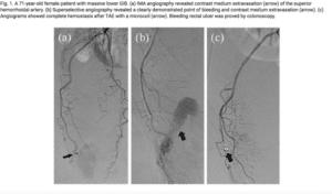 Embolizzazione delle Emorroidi | Dott. Tommaso Lupattelli